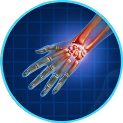 Arthritic Pain in Hands
